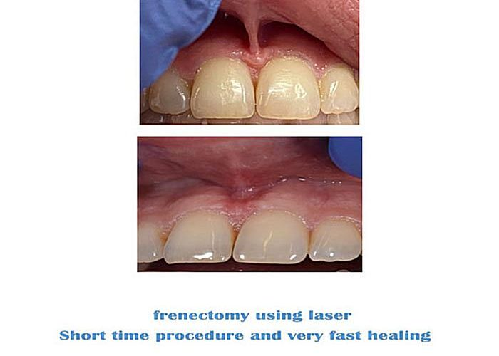Frenectomy--concentrate