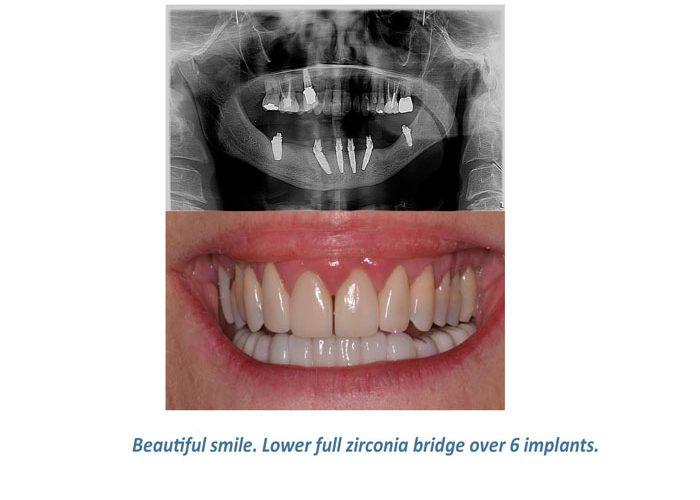 Implant-